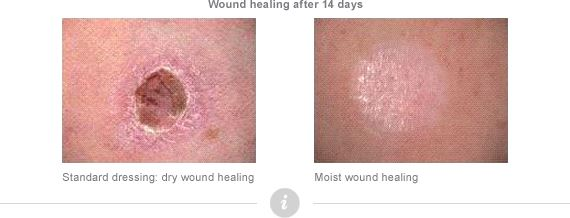 What is moist wound healing?